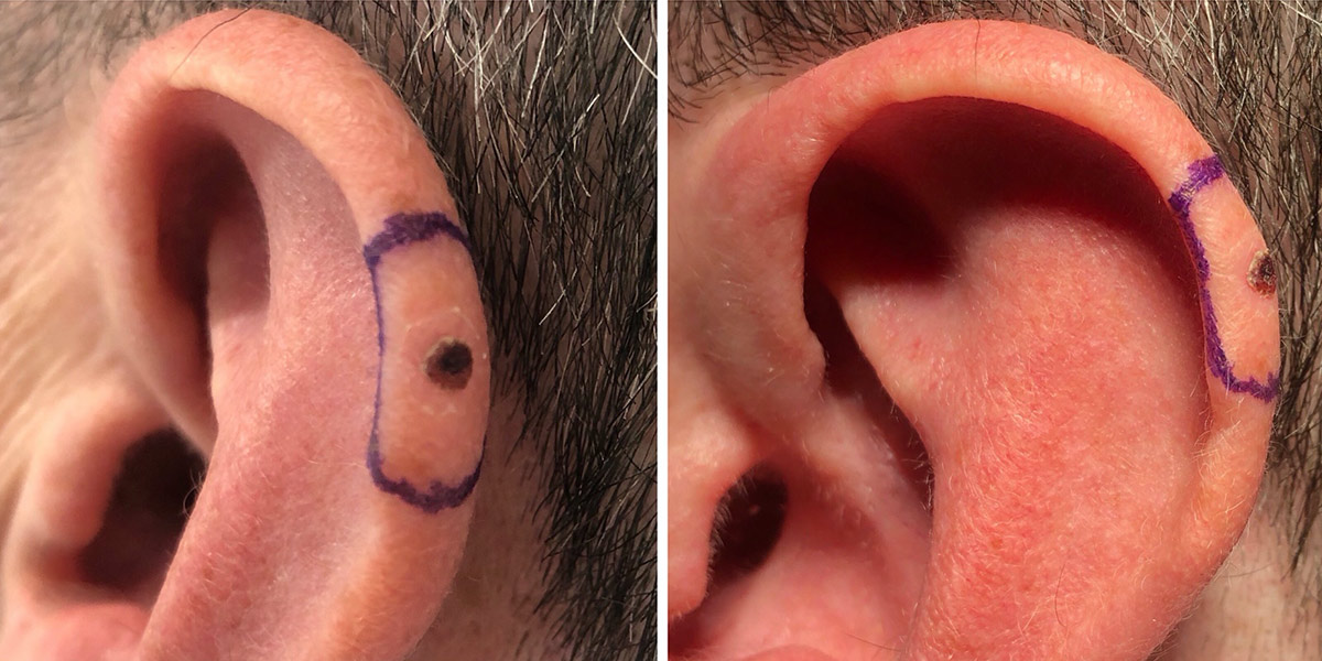 Before: Skin cancer surgery - Melanoma excised from the ear and treated with a skin graft taken from behind the ear.