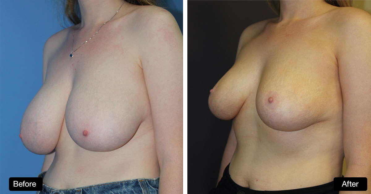 Breast Reduction / Mastopexy - 20 Year Old Patient Before & After (2)