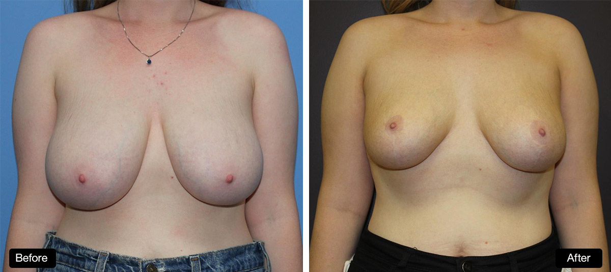 Breast Reduction / Mastopexy - 20 Year Old Patient Before & After (1)