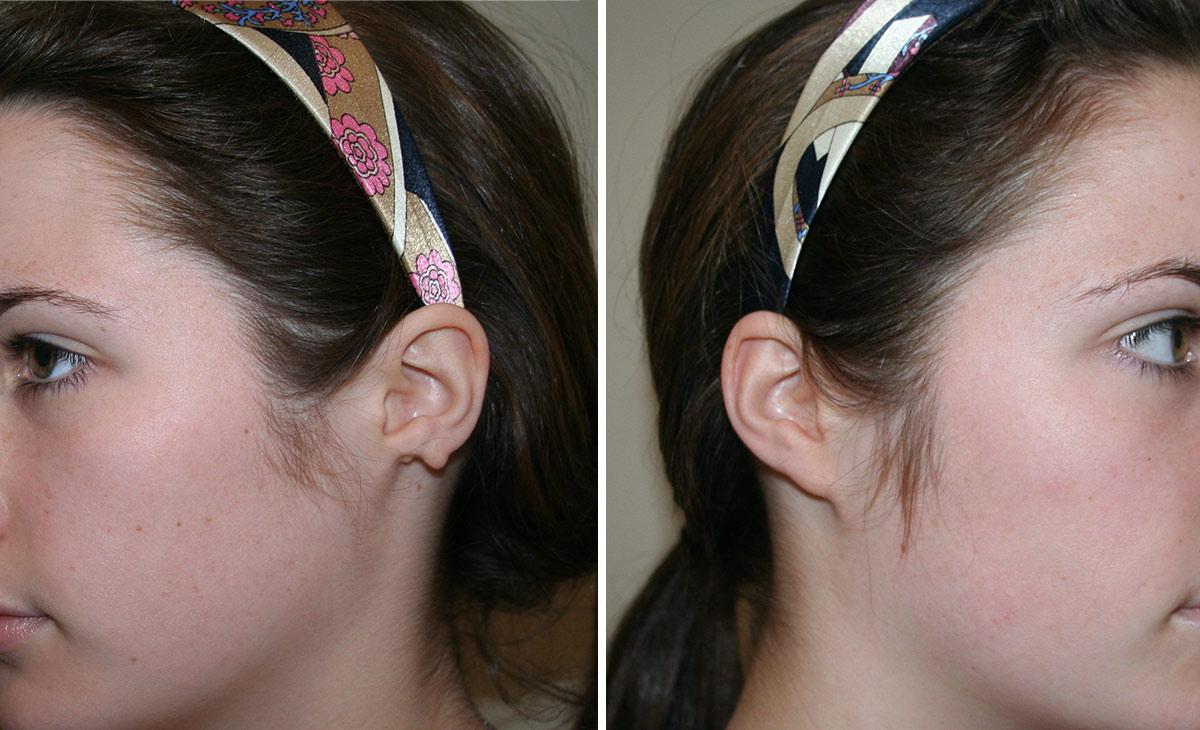 Before: Ear Reconstruction of congenital ear lobe defect - Dr Nicholas Lotz