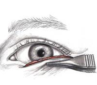 2b. Lower eyelid blepharoplasty - excess skin removal