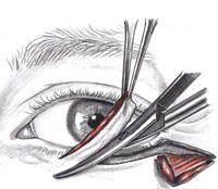 2c. Lower eyelid blepharoplasty - excess skin removal