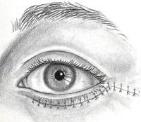 2d. Lower eyelid blepharoplasty - finished wound