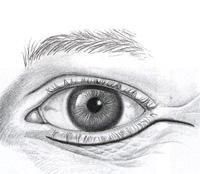 2a. Lower eyelid blepharoplasty - incision