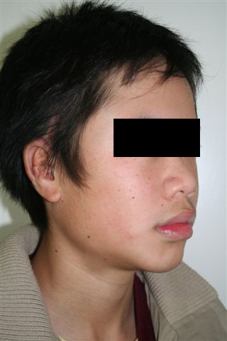 Post-Operative: Photos taken at completion of ear reconstruction surgery. D