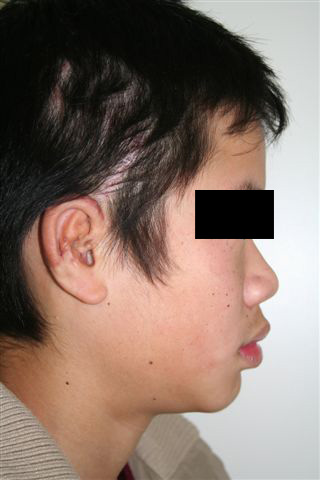 Post-Operative: Photos taken at completion of ear reconstruction surgery. E