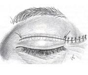 1c. Upper Blepharoplasty - finished scar hidden in eyelid crease