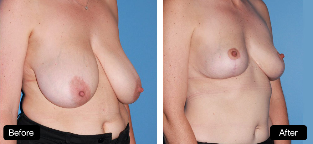 Breast reduction - 37 year old. Before and After: 400g from R side and 500g from left side