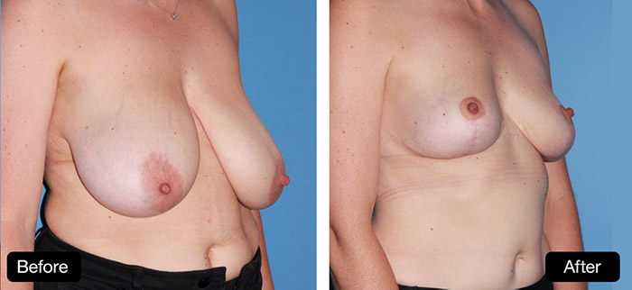 Breast Reduction Surgery - Patient Before & After Image, Dr Nik Lotz