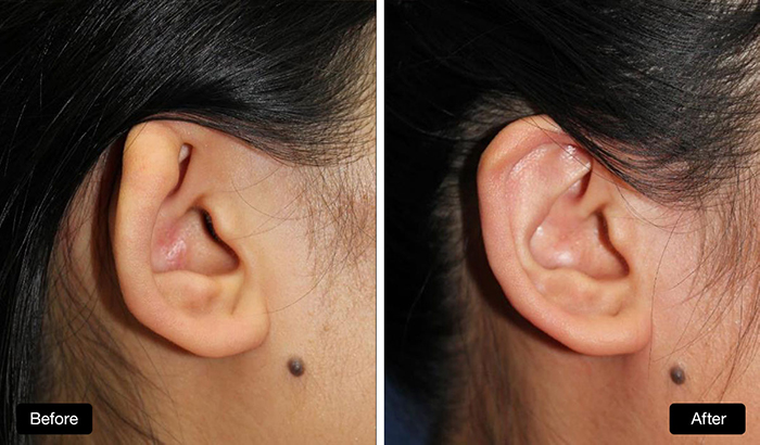 Ear Reconstruction - cartilage graft to repair small folded ear