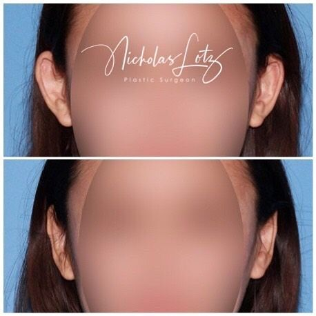 Surgery to correct prominent ears is all about taking the focus off the ears so it is redirected to the centre of the face so you notice the other features and not the ears.  👂 A well performed #otoplasty will leave the ears symmetrical, without any sharp folds or ridges, and it is important that they are not too close to the head or this looks unusual as well.  👂   ❗️make sure your surgeon is FRACS qualified ❗️individual results may vary and all surgery has risks.   #earsurgery #earcorrection #prominentears #plasticsurgery #drlotz #specialistplasticsurgeon #earreduction #earpinning #facialplasticsurgery #earpinningsurgery